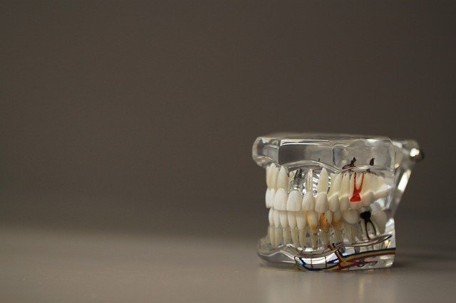 השתלת שיניים ביום אחד בחיפה