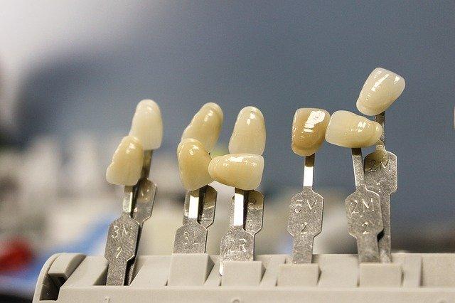השתלת שיניים זמן החלמה