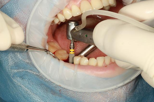 השתלת שיניים ביום אחד בקריות