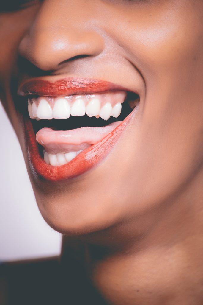 השתלות שיניים בצפון