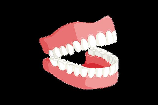 השתלת שיניים לסת עליונה