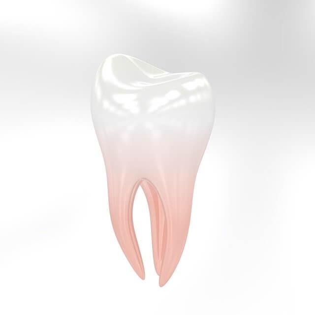 השתלת שיניים עצם
