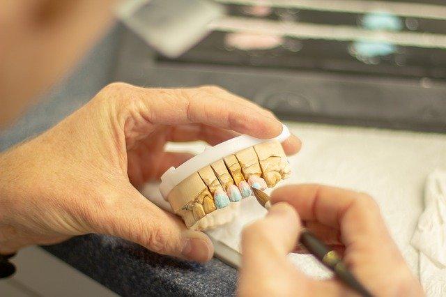 השתלת שיניים בקרית גת
